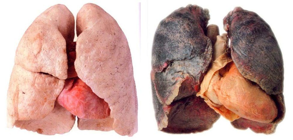 Lungs How do you explain your brain on drugs to someone whos never tried them? Visually of course.