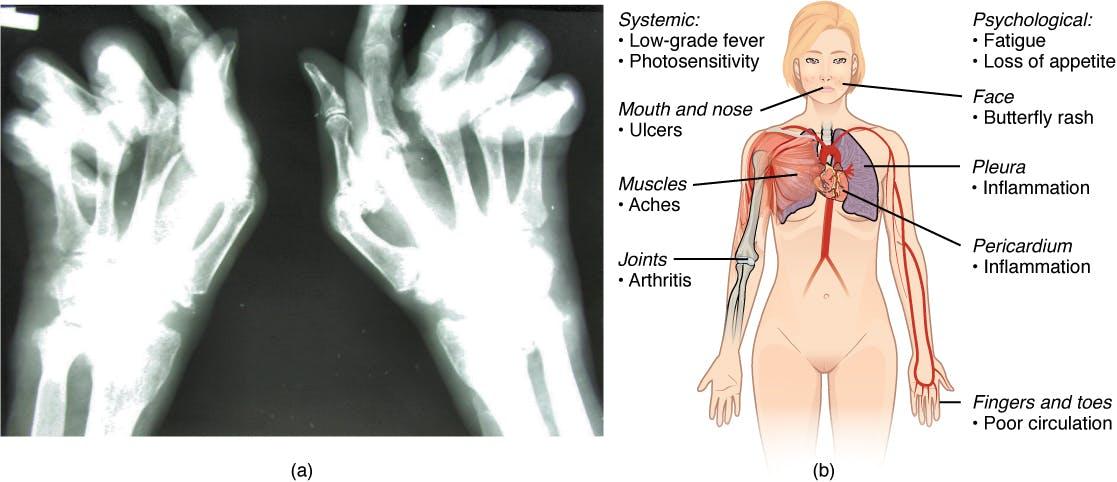 2229 Autoimmune Disorders Rheumatoid Arthritis and Lupus Key & Peele   Obama Smoking Weed During College