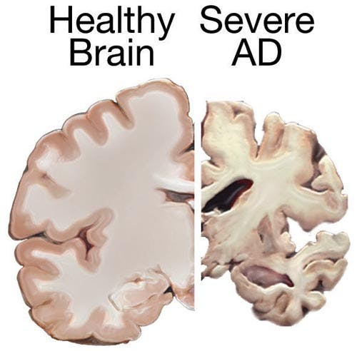 Alzheimers brain Key & Peele   Obama Smoking Weed During College