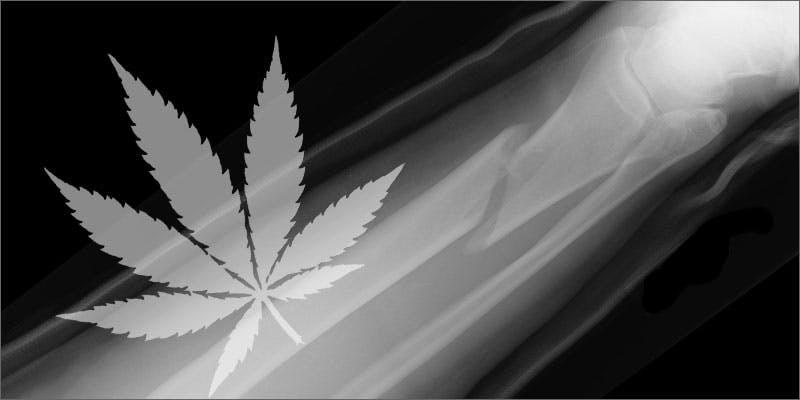 Can marijuana help heal broken bones