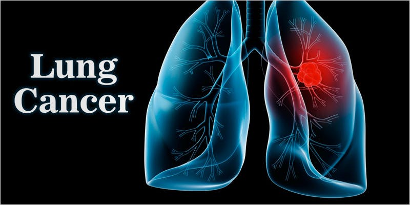 Healthy Lungs 4 3 The Latest Cause For Concern With Colorado Cops