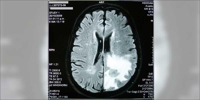 1 how cannabis treats brain cancer scan All In The Mind #5: Cannabis And Bipolar Disorder