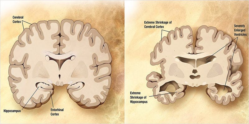 Cure For Alzheimers 1 All In The Mind #5: Cannabis And Bipolar Disorder