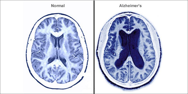 5 cannabis and aging brain alzheimers comparison State Of Marijuana: The Most Important Cannabis Event This Year