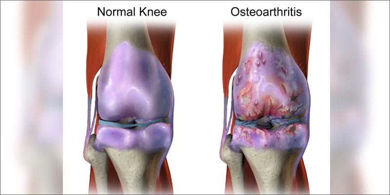 6 cannabis helps bones aging process hero osteoarthritis Better With Age: Does Cannabis Strengthen Bones?