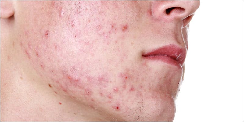 Weed causes acne