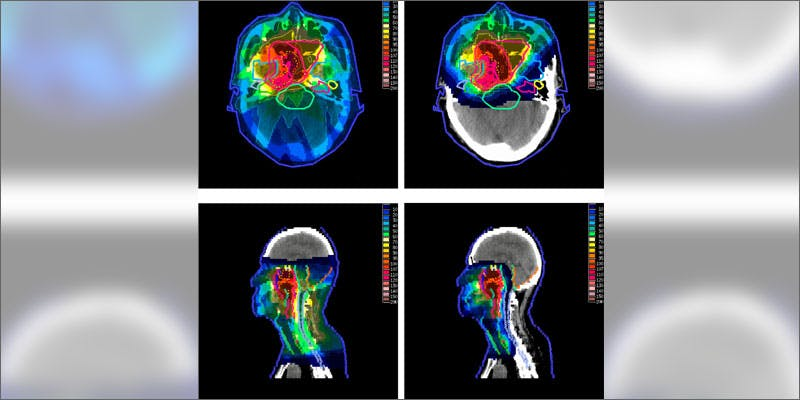 1 radiation oncologist changed cannabis views brain scan Man Walked Free From Court Over Medical Cannabis Charges