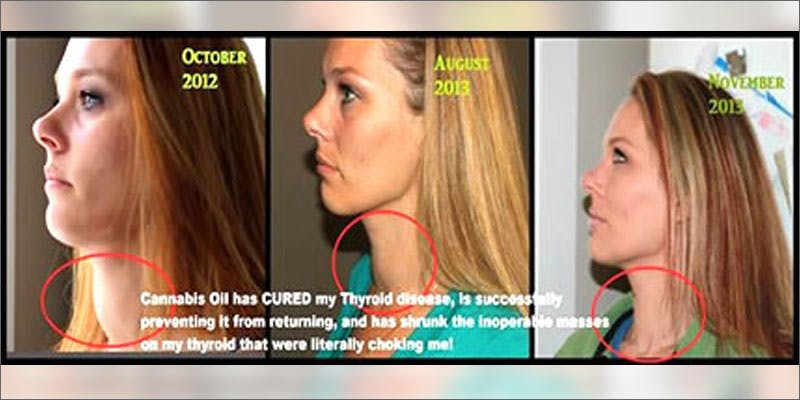 3 cannabis oil heals thyroid disease timeline Christina Bellman: Levo Is The Next Evolution In Home Infusion