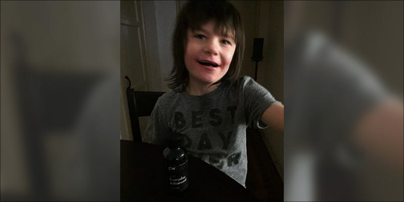 Boys Epileptic Fits 1 Medical Cannabis Has Stopped the Epileptic Seizures in This Young Boy
