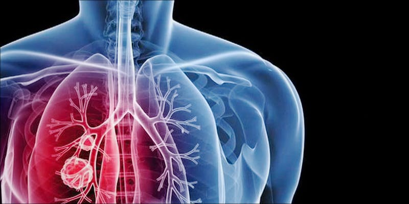 Donate Lungs 4 New Study Confirms Cannabis Consumers Can Donate Lungs