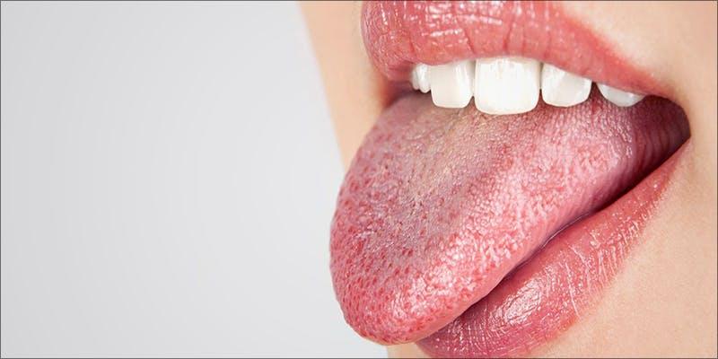 Cotton mouth