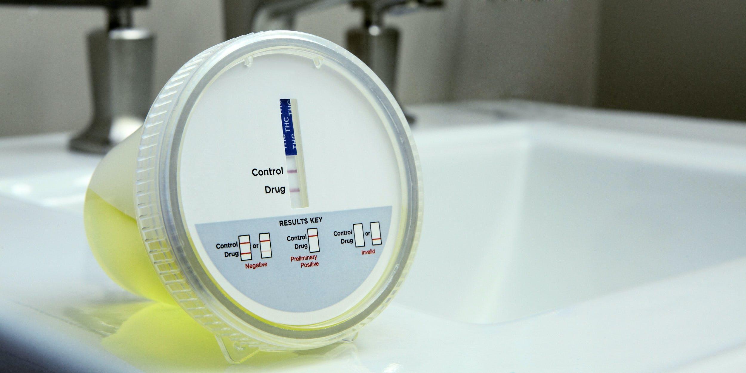 THC Urine Drug Test