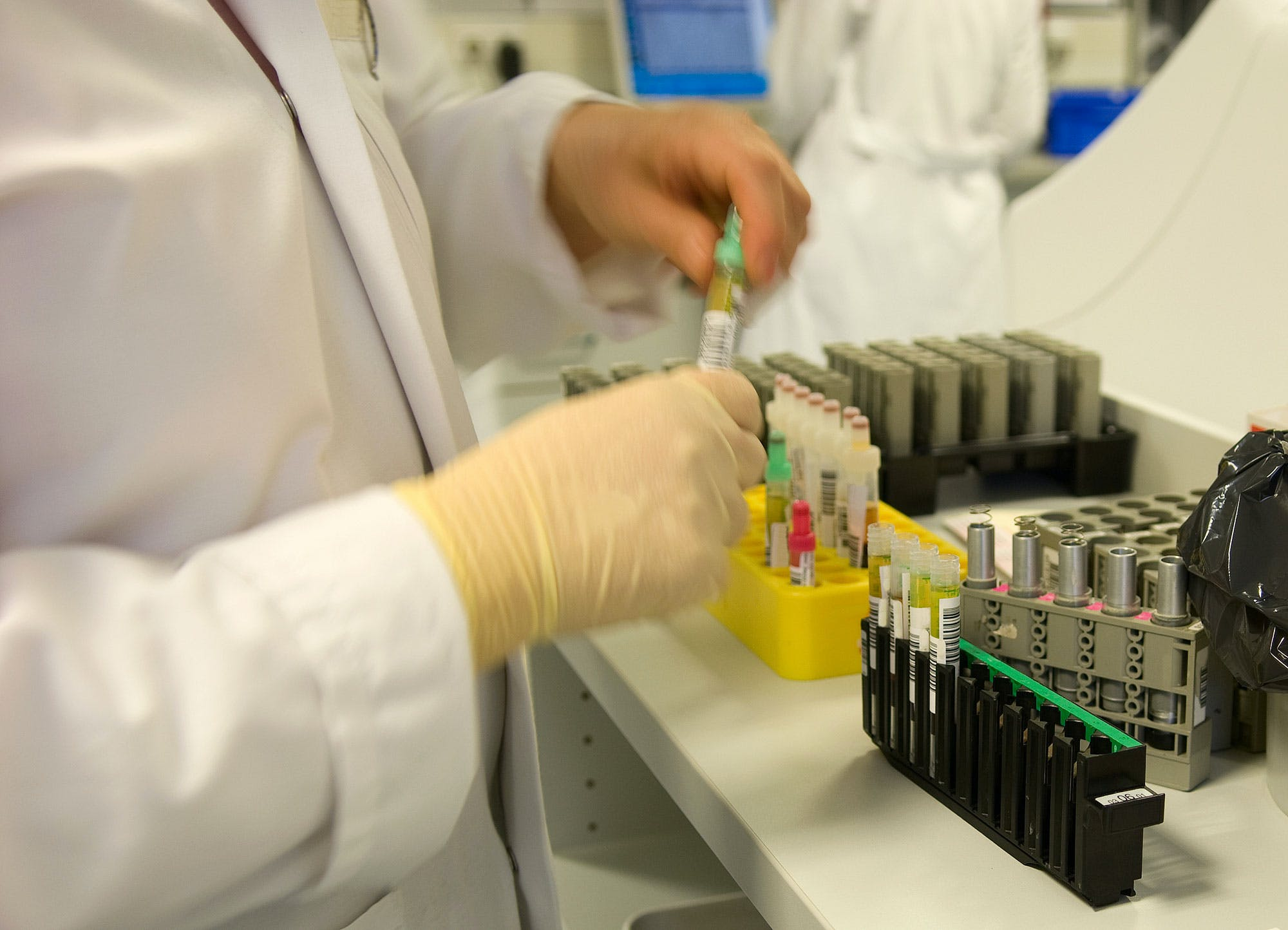 What Should You Expect During A THC Drug Test 2 What Should You Expect During A THC Drug Test?